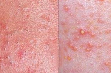 Difference between blackheads and whiteheads