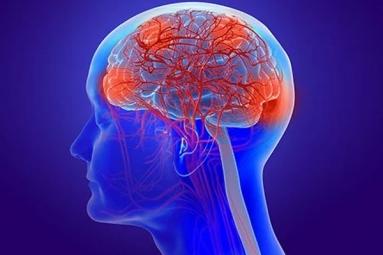 Coronavirus Can Cause Long-Term Loss of Brain Tissue