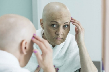 New Cancer Treatment Prevents Hair Loss from Chemotherapy